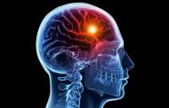 Jednostavan test: Prepoznajte znakove koji ukazuju na moždani udar