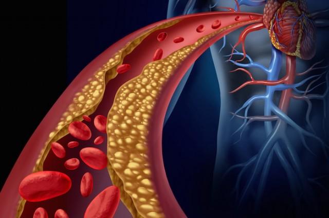krvotok holesterol
