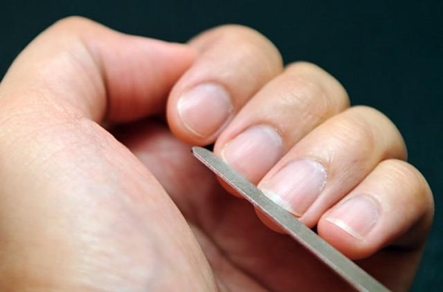Promene na noktima otkrivaju ovih 5 bolesti