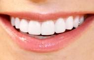 Zaustavite karijes sami, bez zubara