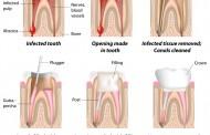 Smrtna opasnost u popravljenim zubima: Otkrivena užasna istina o vađenju živaca