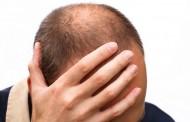 Mešavina ulja za potpunu obnovu i prestanak opadanja kose