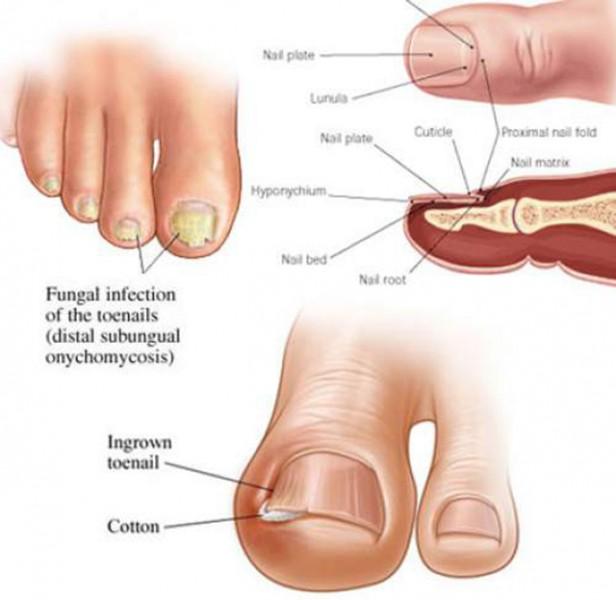 nokti-lecenje-gljivica