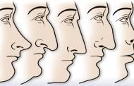 Oblik nosa nije slučajnost, tvorac je to tako zapisao: Šta oblik nosa govori o osobi?