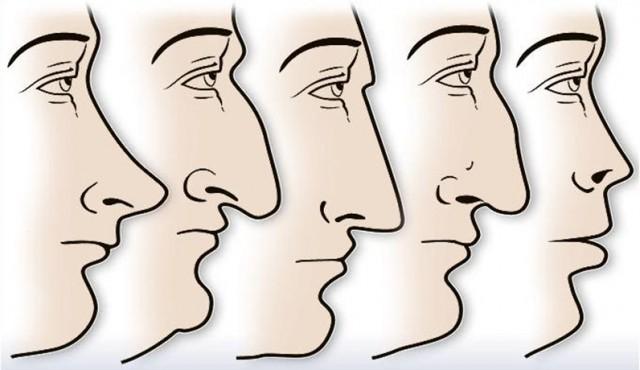 oblik-nosa
