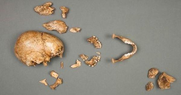 kosti lobanja
