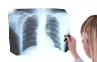 Nеvеrоvаtnо otkriće: Evo kako izlečiti upаlu plućа u rоku оd 3 sаta