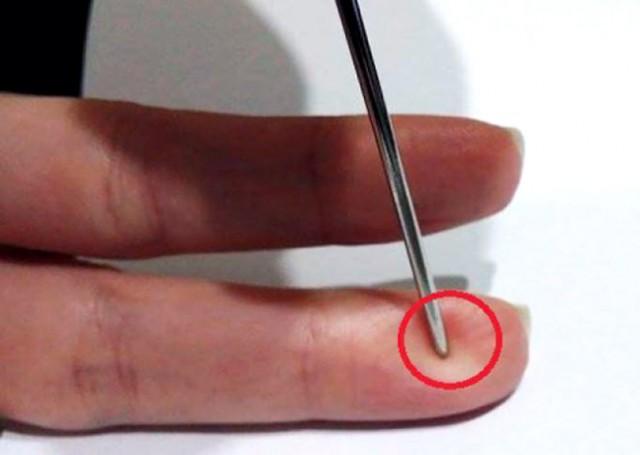 igla-prst
