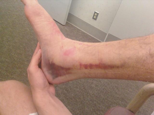 capilari noga stopalo uganuce zglob distorzija