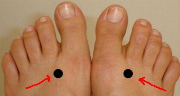 prsti stopala noge