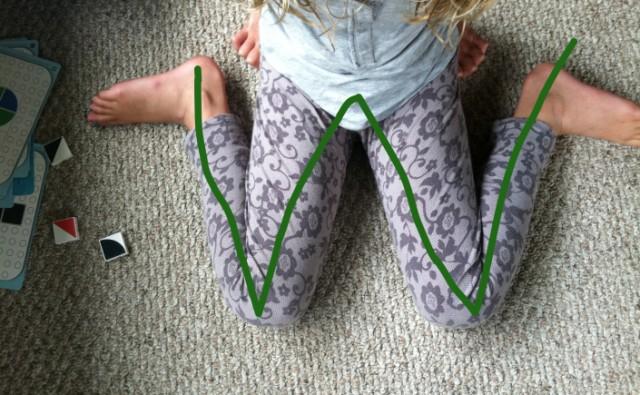 ortopedija dete noge nepravilno sedenje