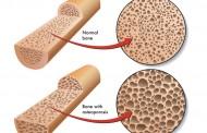 Domaći lek za jačanje kostiju