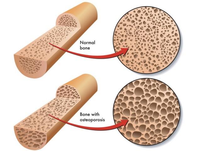Kosti osteoporoza