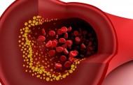 Pročistite začepljene arterije i eliminišite loš holesterol uz pomoć samo 3 sastojka