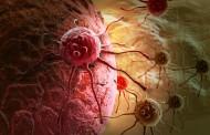 Naučnici okončali nagađanja: Evo šta stvarno izaziva rak