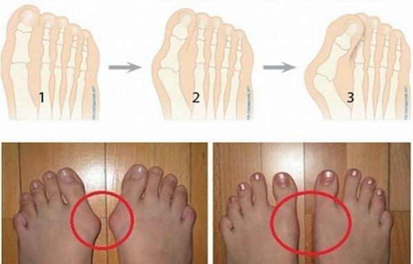 NE TREBA VAM OPERACIJA ZA OVO: 5 načina kako da uklonite čukljeve i izlečite otečene zglobove