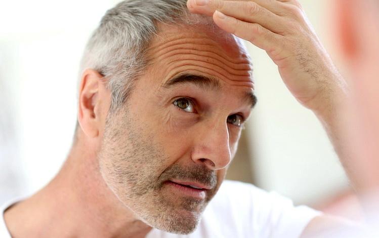 OBRATITE PAŽNJU- ISTINA JE: Ovih 10 zdravih namirnica može pomoći u sprečavanju proređivanja kose!