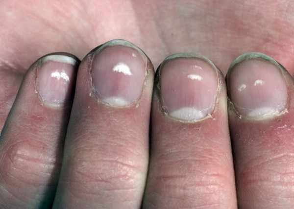 nokti- prsti- bele- tacke