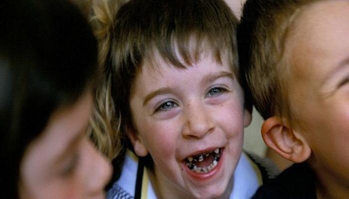 """HOROR U IRSKOJ: Cela nacija zahvaćena """"epidemijom"""" propadanja zuba zbog fluorisanja vode"""