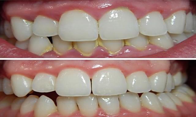 Ova tečnost za ispiranje usta uklanja plak sa zuba za samo 2 minuta