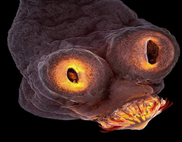 parazit glista trakavica