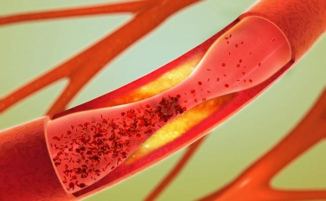 NOVO NAUČNO OTKRIĆE: Hrana sa visokim sadržajem masti stimuliše rast ćelija raka u debelom crevu
