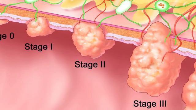 kancer u debelom crevu